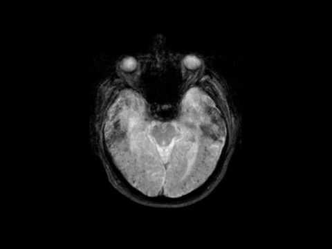 Hämorrhagischer Schlaganfall und Bluthochdruck
