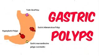 Gastric (Stomach) Polyps!