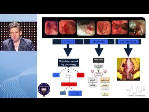 Juvenile onset laryngeal papillomatosis