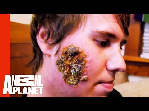 Cancerul bucal se transmite