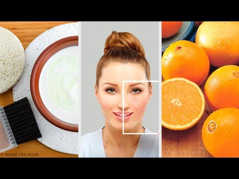 Das Boracidum von den Pigmentflecken der Maske