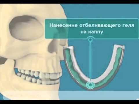 youtube White Light гель для домашнего отбеливания зубов
