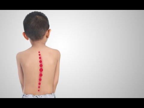 Trattamento di terapia a onde durto posteriore