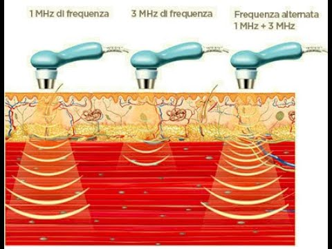 Volume della prostata 11