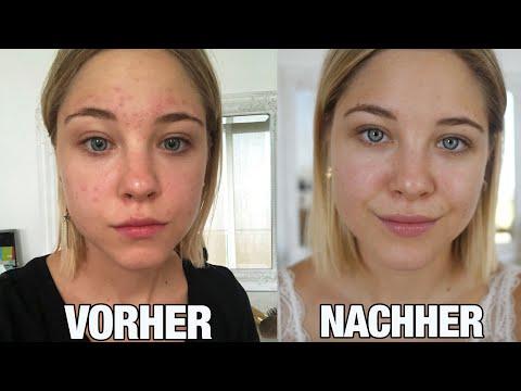Wie ich wirklich langfristig reine Haut bekommen habe I Fehler & Tipps