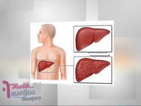Thrombophlebitis ผ่าตัด