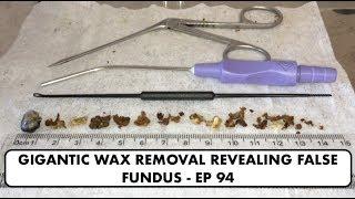 GIGANTIC EAR WAX REMOVAL REVEALING FALSE FUNDUS - EP 94