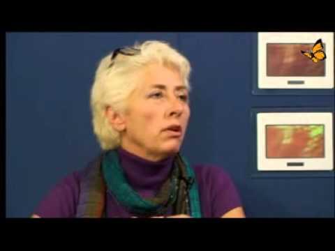 Der Transaktionspreis mit Osteoarthritis des Knies