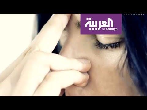 العرب اليوم - شاهد: تعرف على أسباب الانحراف الأنفي وعلاجاته