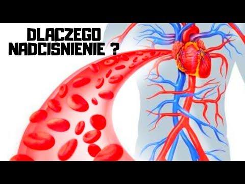 Gwałtowny spadek ciśnienia krwi przyczyn
