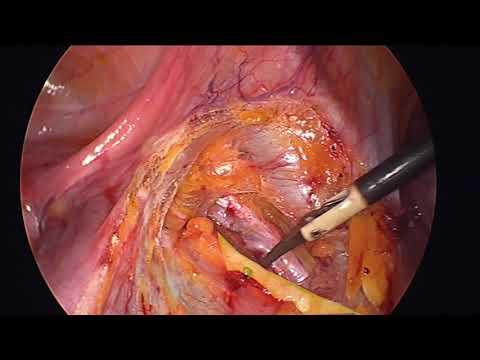 Anatomia miednicy w laparoskopii - quiz