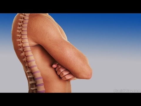 Artificial-Disc-Replacement-Spine-Surgery-Abroad