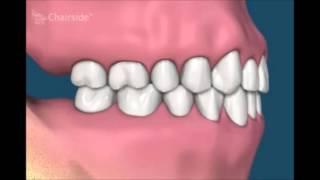 Что будет если не протезировать удаленные зубы на верхней челюсти  Потеря зубов