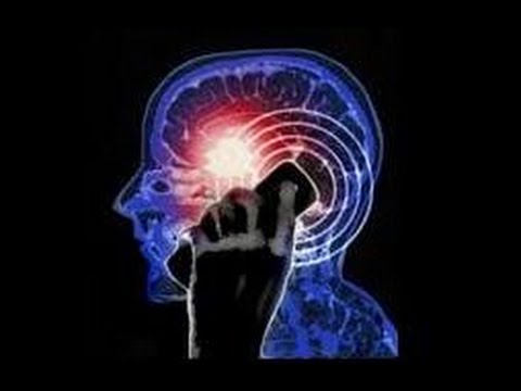 Video Kanker Otak : Gejala, Penyebab dan Cara mengatasinya