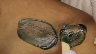 Male Hair Removal-Underarm Waxing for Men in New York (Cirepil Hard Wax) Sensitive Skin