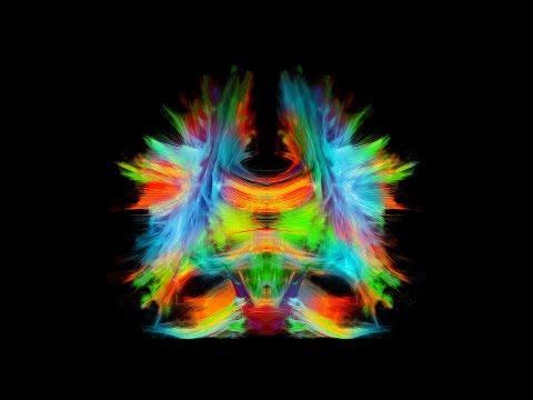 La connaissance du cerveau est encore embryonnaire, mais la neuroinformatique pourrait propulser sa compréhension vers des sommets jusqu'ici inaccessibles. En effet, la neuroinformatique, pont entre l'informatique et la médecine, permettra de cartographier les connexions du cerveau. Cette quête mènera non seulement à des découvertes importantes sur le cerveau sain, mais aussi à des avancées majeures dans le diagnostic des tumeurs cérébrales, des maladies neurodégénératives telles que la maladie d'Alzheimer et la maladie de Parkinson, des commotions cérébrales et de l'autisme.  Il n'existe qu'une seule technique non invasive pour cartographier l'architecture du cerveau et ses connexions : l'IRM de diffusion (IRMd). Cette technique d'imagerie utilisée en clinique pose cependant des défis colossaux sur le plan mathématique et informatique. Les recherches du professeur-chercheur Maxime Descoteaux s'attaquent donc à toutes les étapes de la chaîne de traitement, depuis l'acquisition rapide d'images sur l'IRM, jusqu'à l'application du de la cartographie du cerveau sur des sujets sains et malades. Avec son équipe de recherche, il veut développer une technologie de cartographie optimale pour qu'elle puisse être utilisée de façon routinière en clinique.   Maxime Descoteaux, Ph. D., est professeur-chercheur au département d'informatique de la Faculté des sciences de l'Université de Sherbrooke et au Centre de recherche du CHUS.