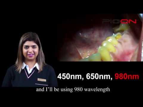 S1 Blue 3 Wavelengths Dental Laser/ PIOON dentistry restorative crown lengthening