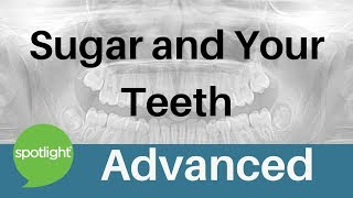 Spotlight - Sugar And Your Teeth