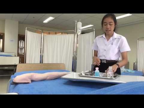 Thrombophlebitis ของแขนขาลดลง