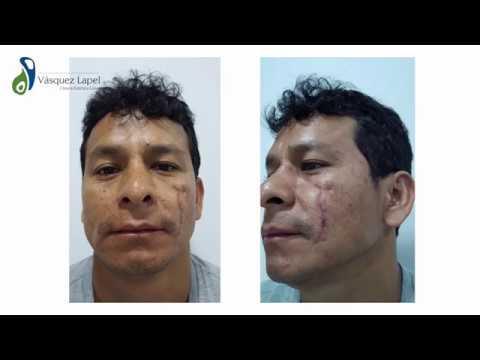 Atopichesky la dermatitis a los niños el tratamiento del vídeo