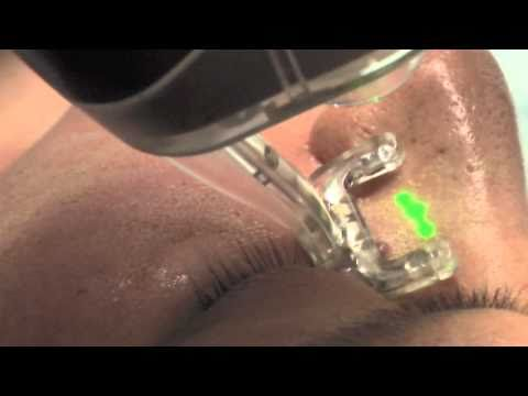 Laser Treatments San Diego