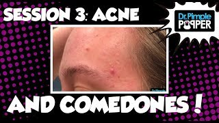 Session Three: Acne and Comedones