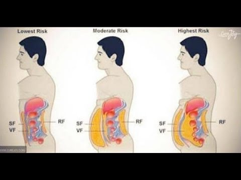 Тренировка и питание эндоморфа для похудения