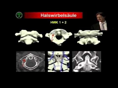 Ups Hernie Halswirbelsäule Wirbelsäule Video