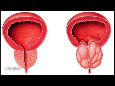 Рецепты народные для лечения простатита