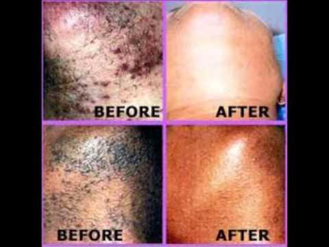 A causa di quello che cè eczema