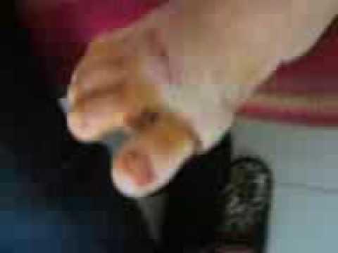 Il cono su un pollice su un trattamento di gamba da rimedi di gente
