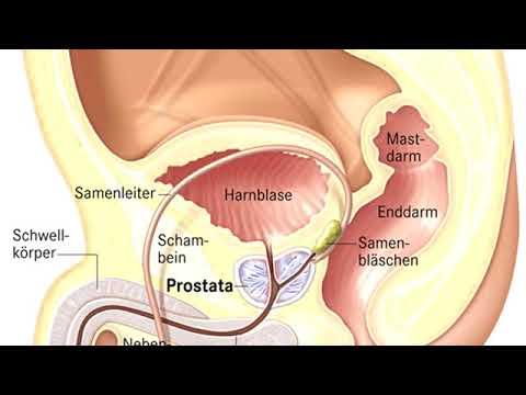 Indikationen für Prostatitis