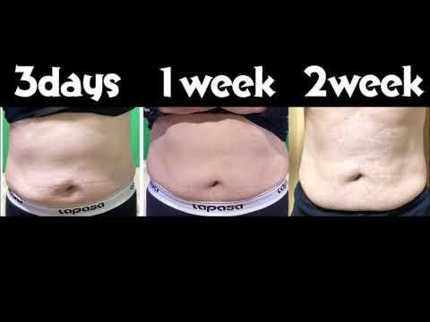 Progressi nella perdita di grasso della pancia
