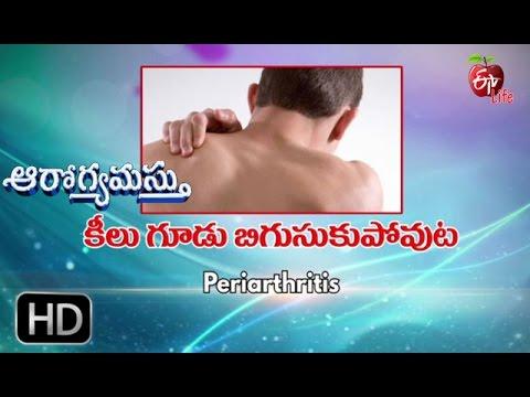 A csípőízületek ízületi gyulladásának okai