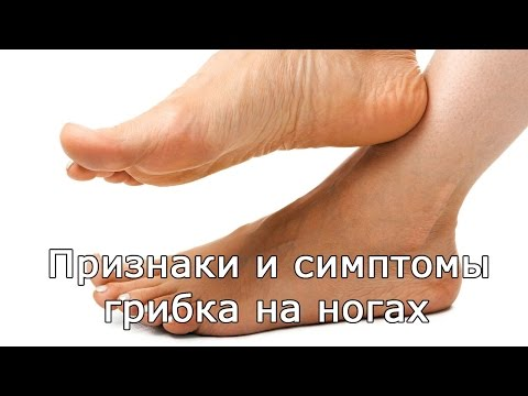 Дрожжевой грибок стопы чем лечить - О грибке ногтей