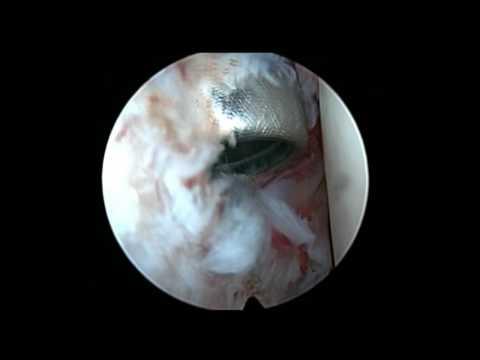 Medicamente pentru exacerbarea osteochondrozei coloanei vertebrale cervicale