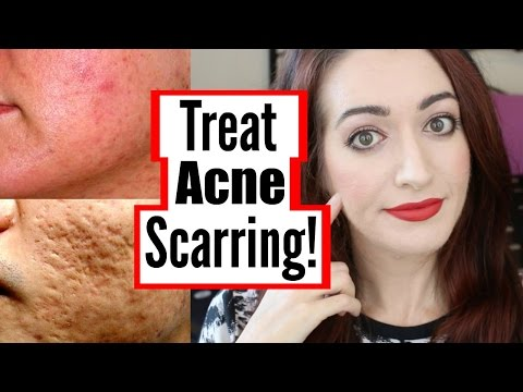 Video How To Treat Mild, Moderate And Severe Acne Scarring! DIY, At Home & More!