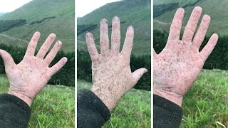 Giant Swarm Of Midges Stick To Hand In Scotland