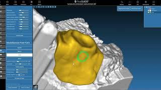 Dima per antrostomia 3D per rialzo di seno: costruzione digitale