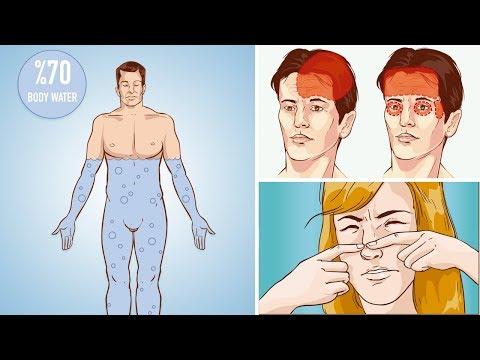 Le bioderme node vers le psoriasis