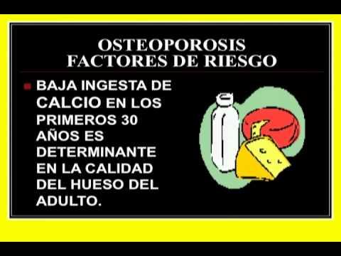 11/08/12 La osteoporosis se está convirtiendo en una de las enfermedades más mortales
