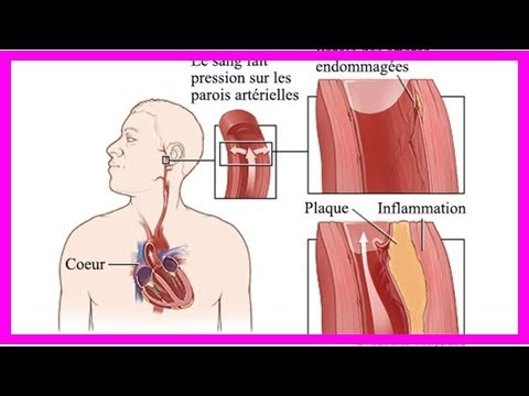 Raisons de la forte baisse de la pression artérielle chez les femmes