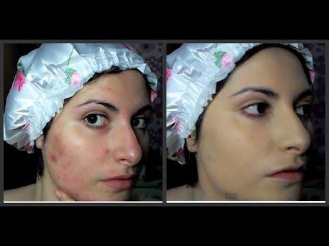 Quali medicine antihistaminic è migliore a dermatite atopic