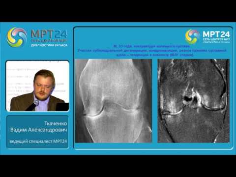 «Воспалительные изменения костно-суставной системы».