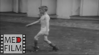 Disturbance of gait in nervous diseases (soundless) © Нарушение походки при нервных заболеваниях