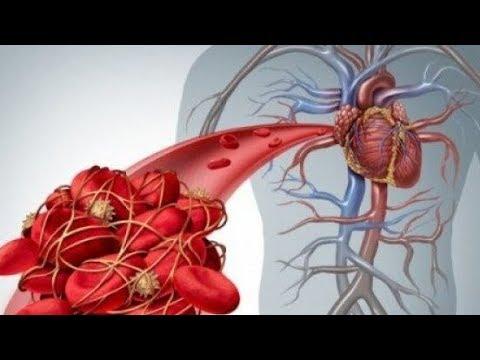 Ώστε να λαμβάνει χώρα με την αλλαγή της πίεσης του αίματος σε ατμοσφαιρική πίεση