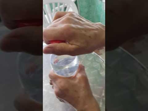 Necrosi asettica della testa dellanca del CIM 10