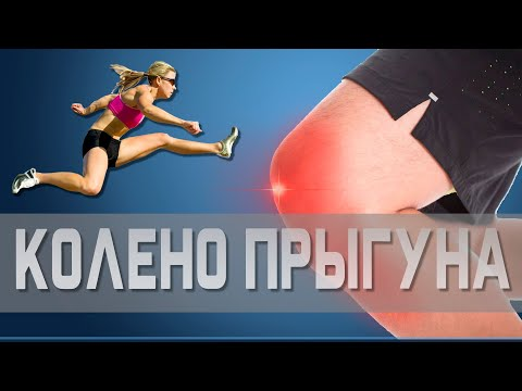 Что такое ТЕНДИНИТ коленного сустава и как его вылечить | Доктор Демченко