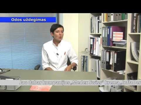 Prarasti riebalai šonkaulių narve