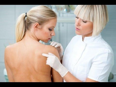 Eczema di fotografia cronico